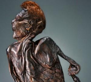Irish bog body